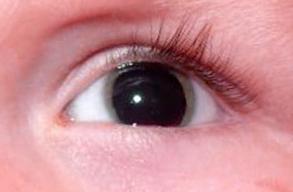 Ojo sin presencia de iris