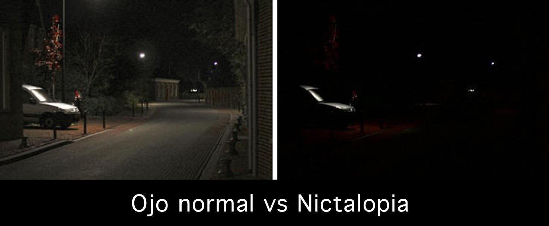 Comparativa entre ojo normal y ojo con nictalopia